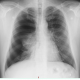 Spontanpneumothorax