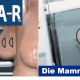 Die Mammographie - digitale Technik