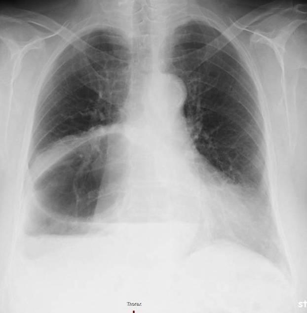 magen im thorax