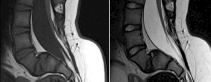 Auf mrt was ein bedeutet ausrufezeichen Werden Tumore