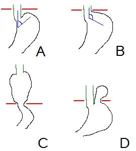 anteile des magens