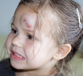 Muss ein Kind nach Sturz auf den Kopf geröntgt werden