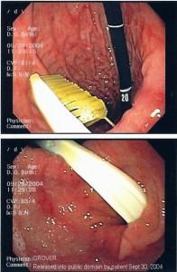 Endoskopische Entfernung einer verschluckten Zahnbürste - Foto: Wikipedia