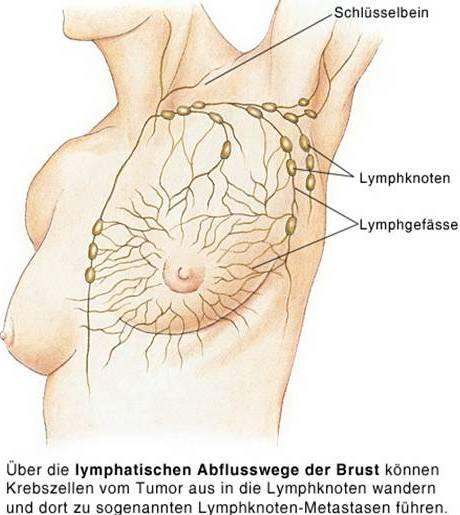 Sentinel-Lymph-Nodes beim Mammakarzinom (4) X - MTA-R.de